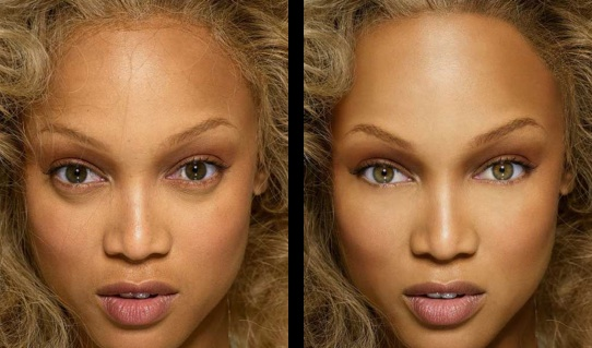 Tyra-banks-face-before-and-after