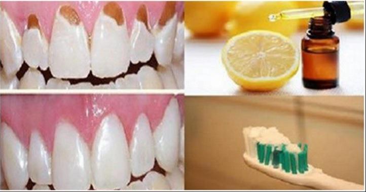 Как делать белые зубы в домашних условиях